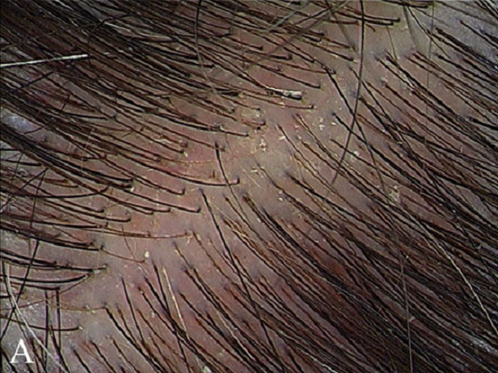 oily-scalp